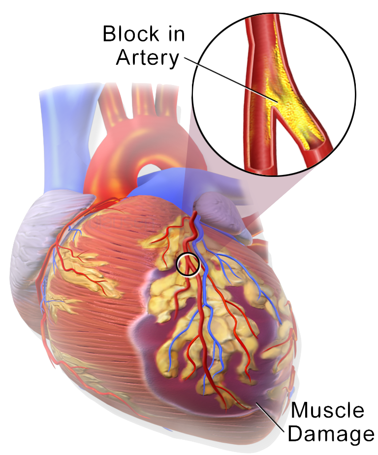 The 4 Things That Happen Before a Heart Attack | Heal Within Group ...