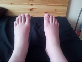 swollen-ankles